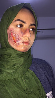 Manar Mohamed special effects makeup artist. Work by makeup artist Manar Mahmoud demonstrating Special Fx Makeup.Horror Film SFXSpecial Fx Makeup Photo #203622