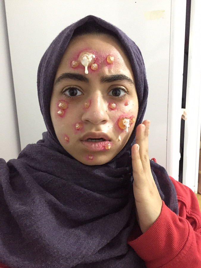 Manar Mohamed special effects makeup artist. Work by makeup artist Manar Mahmoud demonstrating Special Fx Makeup.Horror Film SFXSpecial Fx Makeup Photo #207900